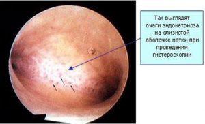 Экстрагенитальный эндометриоз: что это такое, симптомы и лечение