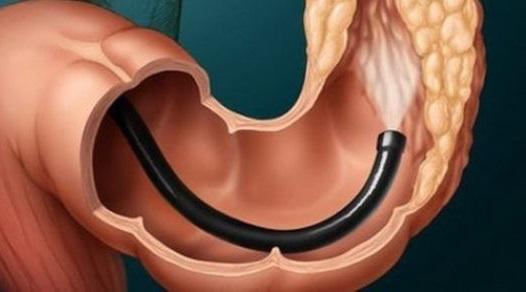 Колоноскопия кишечника: что это такое, как и для чего делают