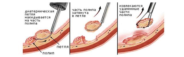 Полипы прямой кишки у ребенка: симптомы, медикаментозное и народное лечение, а также удаление
