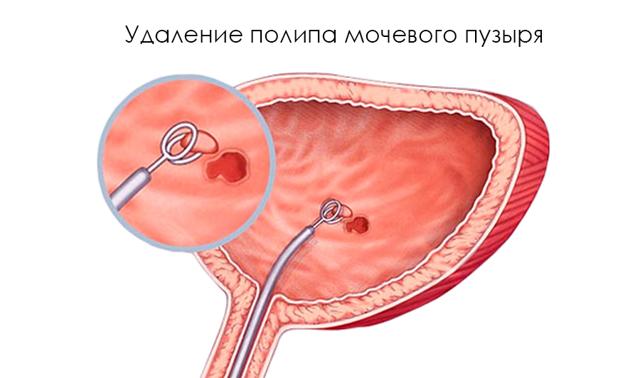 Удаление полипа в мочевом пузыре: как удаляют, сколько стоит операция