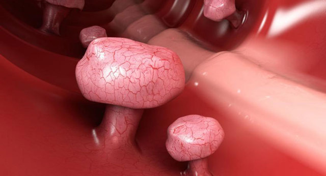 Эндоскопическая полипэктомия: носа, почеки желчного пузыря
