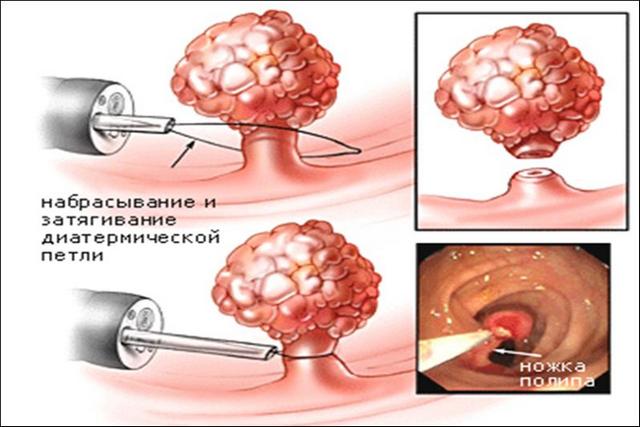 Полипы в толстом кишечнике: код по МКБ 10, симптомы и причины, лечение и прогноз