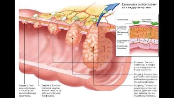 Полип поперечно-ободочной кишки: виды и методы лечения