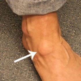Жировик на ноге: причины и лечение, методы удаления