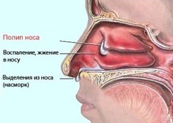 Почему растут полипы в носу - основные причины возникновения полипоза