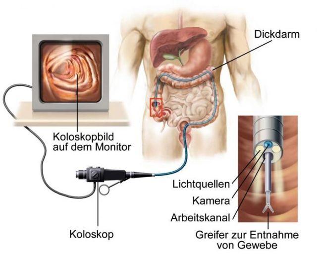 Фиброколоноскопия и колоноскопия, в чём разница между методами