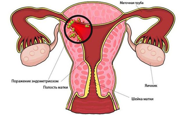 Внутренний эндометриоз матки, что это такое доступным языком