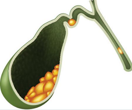 Осадок в желчном пузыре: симптомы, причины и лечение