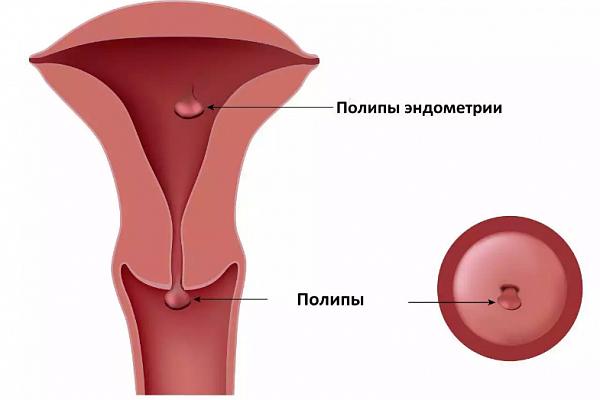 Дюфастон при полипе эндометрия: показания, схема и дозировка