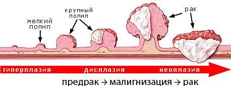 Как удаляют полип в желудке, сколько длится операция и под каким наркозом