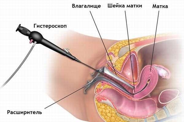 Полипы на яичниках: что это такое, симптомы и лечение