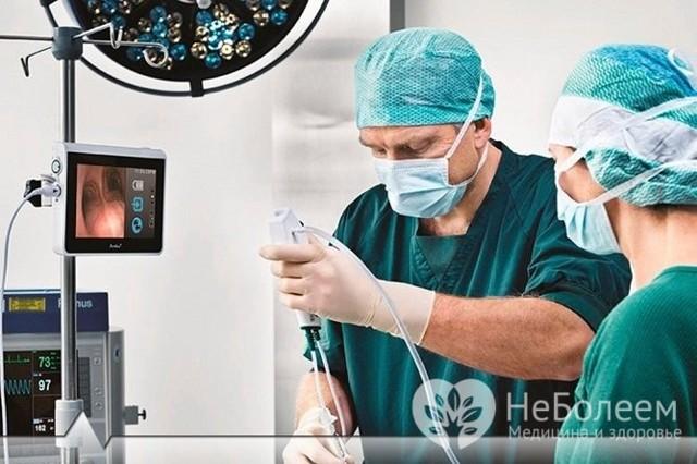 Фиброзный полип прямой кишки: симптомы, операция и последствия