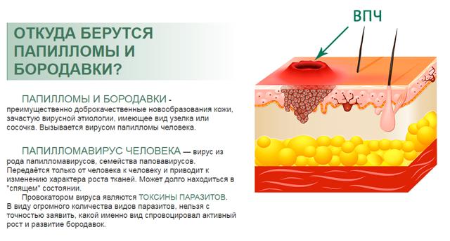Народные средства от папиллом на теле: эффективные рецепты