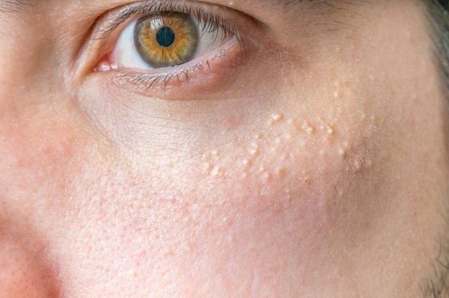 Жировики на лице: как убрать в домашних условиях и в клинике