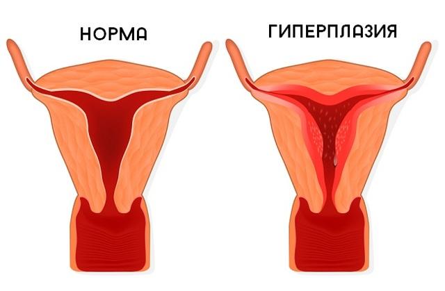 Фиброэпителиальный полип: эндометрия, прямой кишки