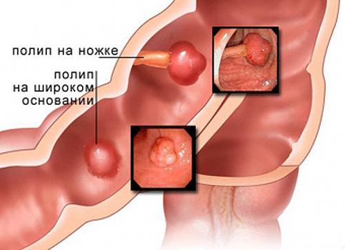 Аденоматозный полип желчного пузыря: УЗИ, лечение и прогноз