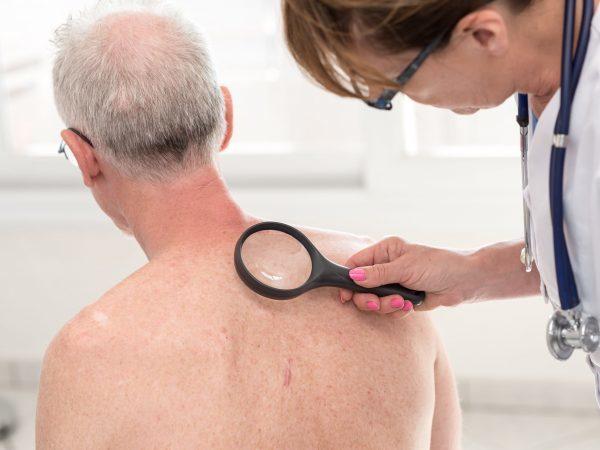 Полипы на коже: фиброзный и фиброэпитальный, причины и лечение