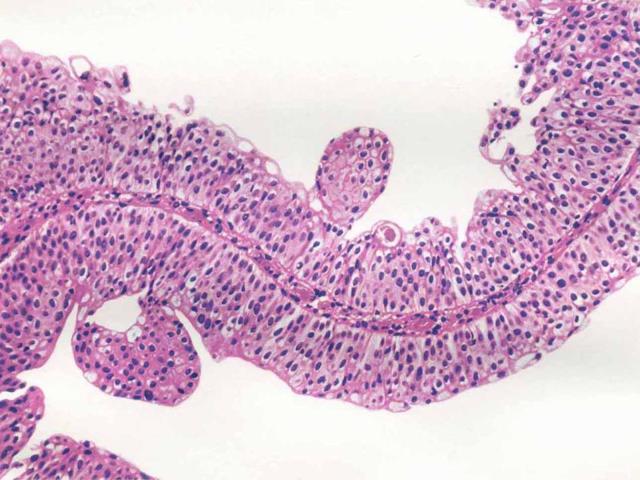 Плоскоклеточная папиллома: кожи, гортани, пищевода и желудка