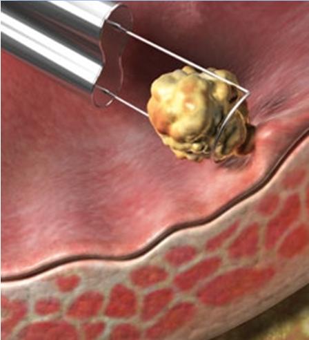 Лечение полипов в мочевом пузыре народными средствами