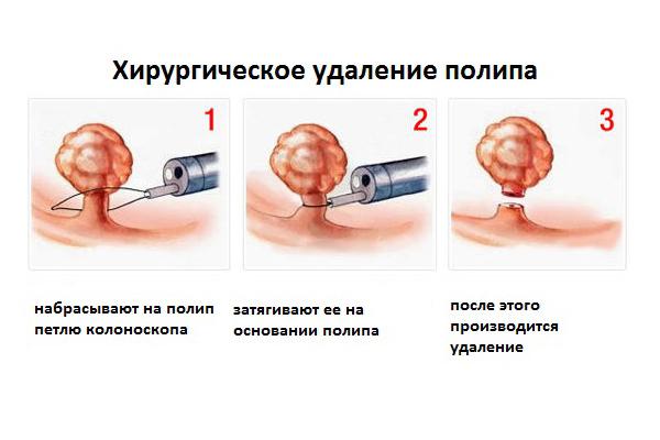 Операция по удалению полипа в матке: способы вмешательства, возможные осложнения