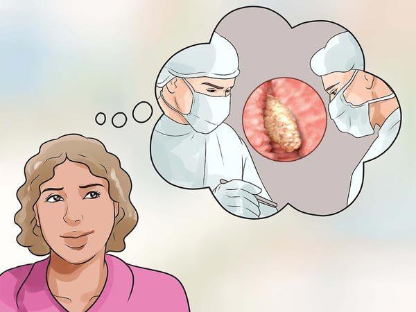 Железисто-фиброзный полип: что это такое, лечение и удаление