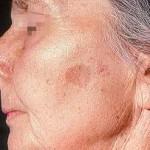 Синдром Пейтца-Егерса - есть ли лечение заболевания