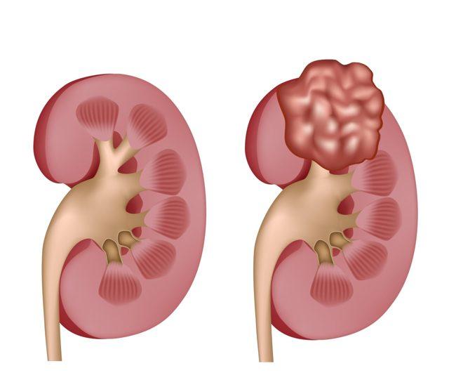 Липома почки: причины и симптомы, диагностика и методы лечения