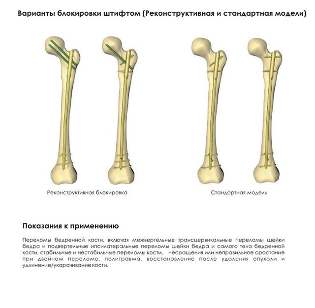 Остеома бедренной кости: симптомы, лечение и реабилитация