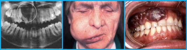 Остеома челюсти: лечение остеомы нижней и верхней челюсти