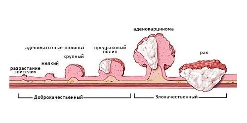 Полипы в почках: что это такое, диагностика и лечение