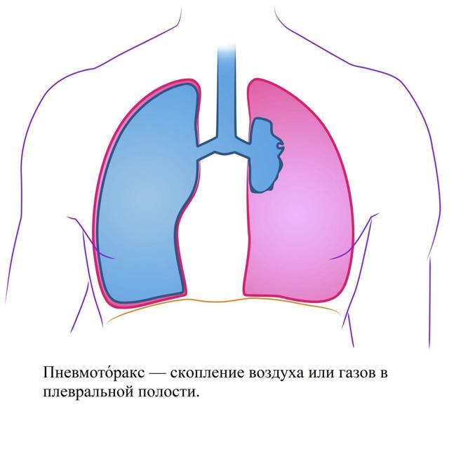 Лапароскопия в гинекологии - показания и суть метода