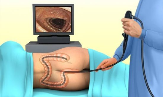 Как обнаружить полипы в кишечнике: анализ крови, гистология и другие методы