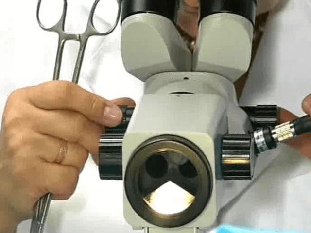 Кольпоскопия, что это за процедура, кому показана и как делают