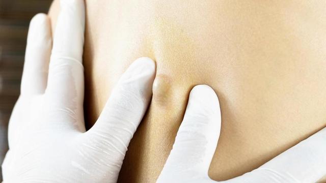 Жировик в паху - причины и лечение липомы в паху у мужчин