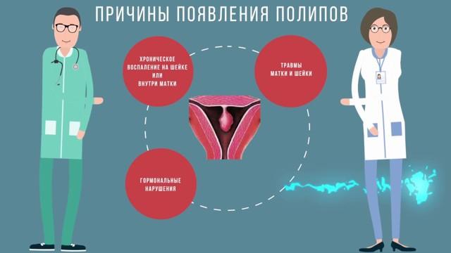 Удаление лазером полипа цервикального канала: подготовка, этапы