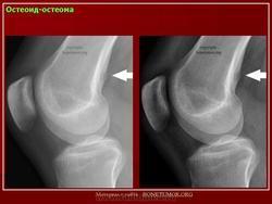 Остеоид-остеома: позвоночника, большеберцовой и бедренной кости