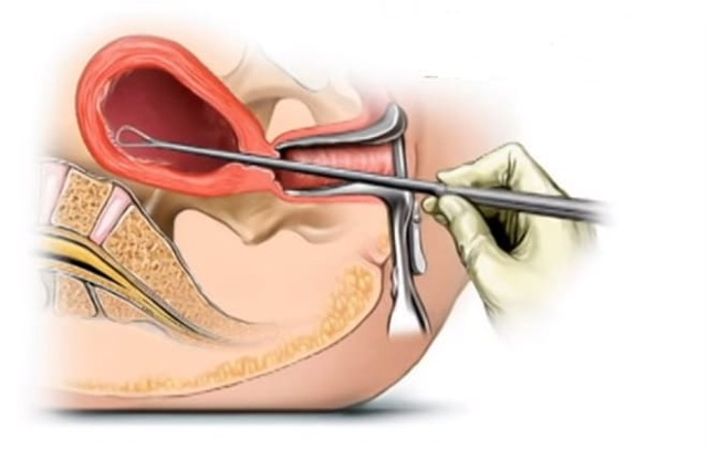 Железисто-кистозный полип эндометрия - методы лечения