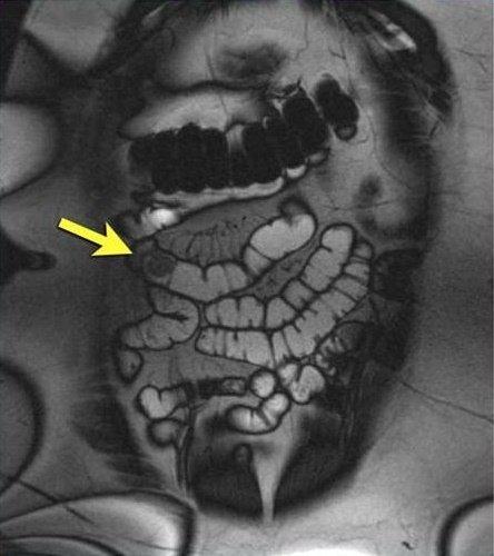 Что лучше: ирригоскопия или колоноскопия и в чём отличия