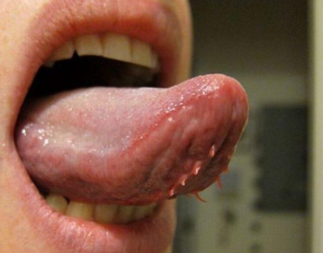 Папилломы во рту: причины возникновения, лечение и удаление