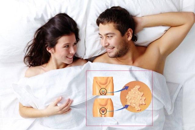 Папилломы при беременности: на шее и ореолах, в интимном месте