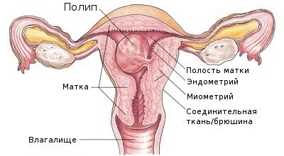 Фиброзно-железистый полип цервикального канала - что это такое
