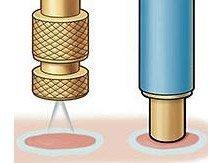 Удаление папиллом чистотелом - инструкция по применению