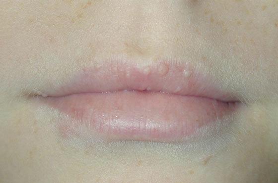 Жировики на губах: причины возникновения липомы, как их убрать
