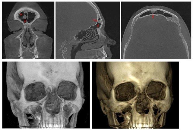 Остеома лобной пазухи: что это такое, лечение и удаление