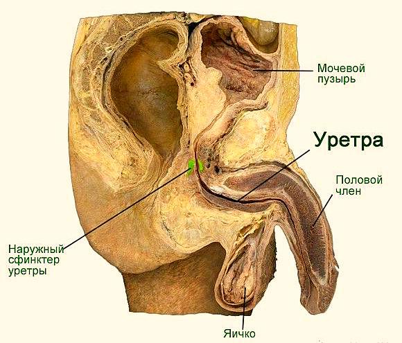 Полип уретры у мужчин: причины возникновения, лечение и удаление