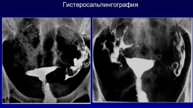 Эндометриоз яичника: что это такое доступным языком