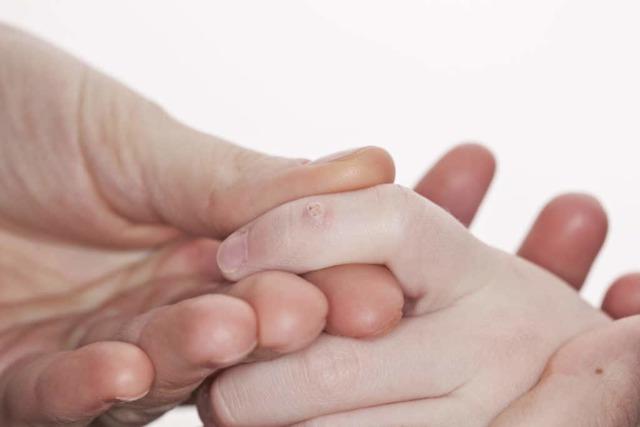 Папиллома у новорожденного: причины, лечение и прогноз
