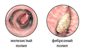 Децидуальный полип матки и цервикального канала
