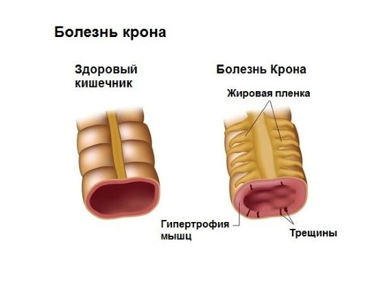 Как часто можно делать колоноскопию кишечника после 40, 50, 55 и 60 лет