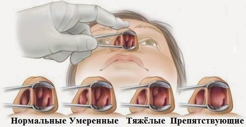 Удаление полипов в носу лазером - методы коррекции